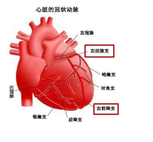 心脏血管前降支_过节并非都美好-冠脉CT报告解读-别有病 Byb.cn-纯自然疗法 攻克亚 ...